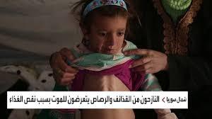 الجوع يفتك بأطفال المخيمات بمناطق سيطرة قوات سوريا الديمقراطية..